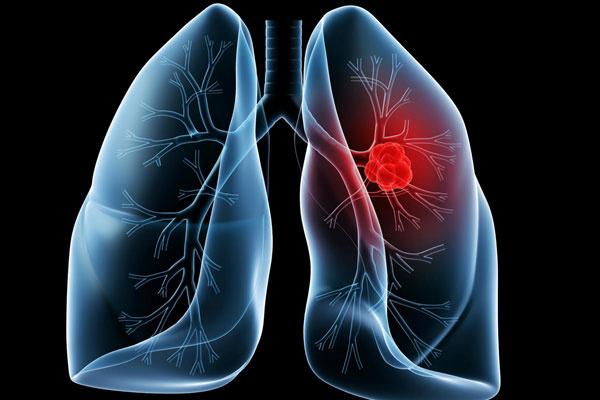 强强联合,提升诊断普及率和精准度,阿斯利康中国再助力肺癌诊疗新模式