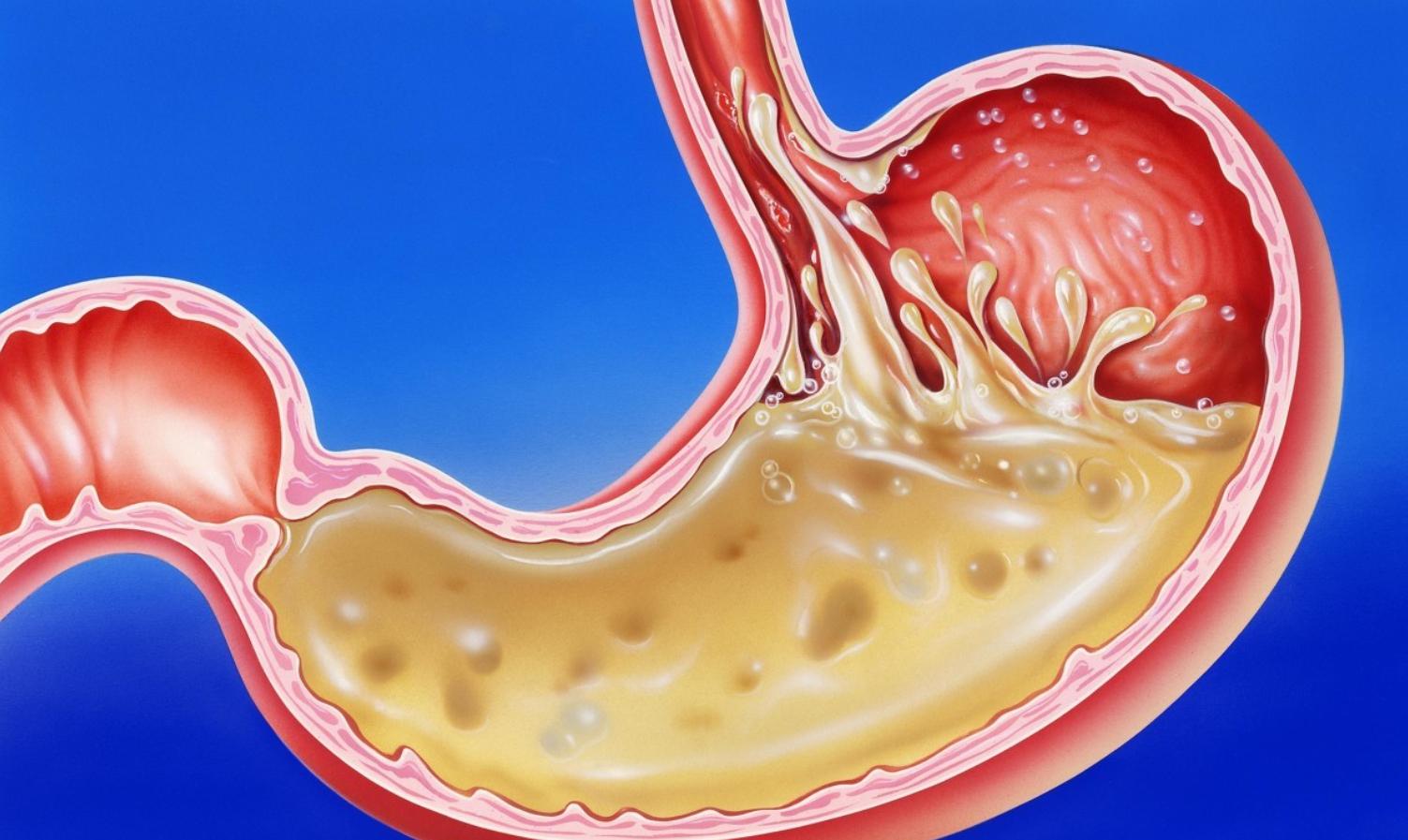与化疗相比,欧狄沃联合化疗一线治疗胃癌与食管癌,显著提升总生存期与无进展生存期