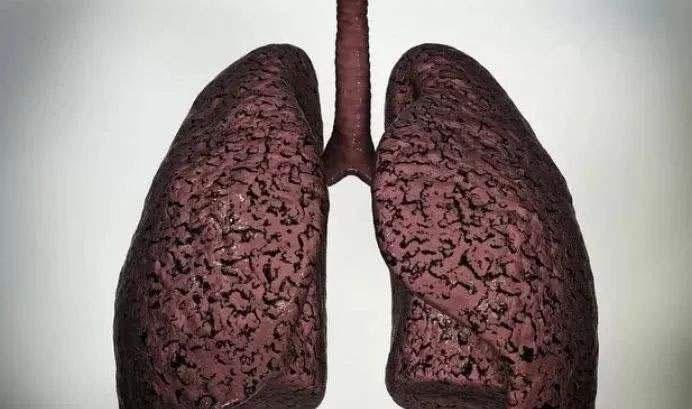 最新中国肺癌报告