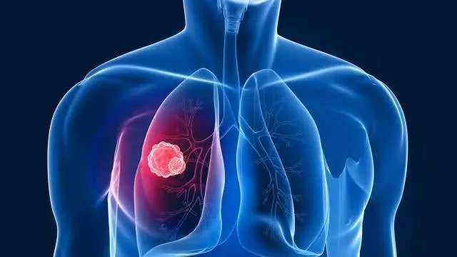 非小细胞肺癌免疫治疗新突破,显著延长患者无进展生存期,降低疾病进展或死亡风险50%!