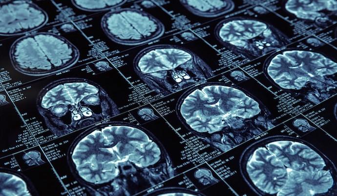 器审中心征集企业参与影像超声诊断设备AI软件《审评要点》编制工作