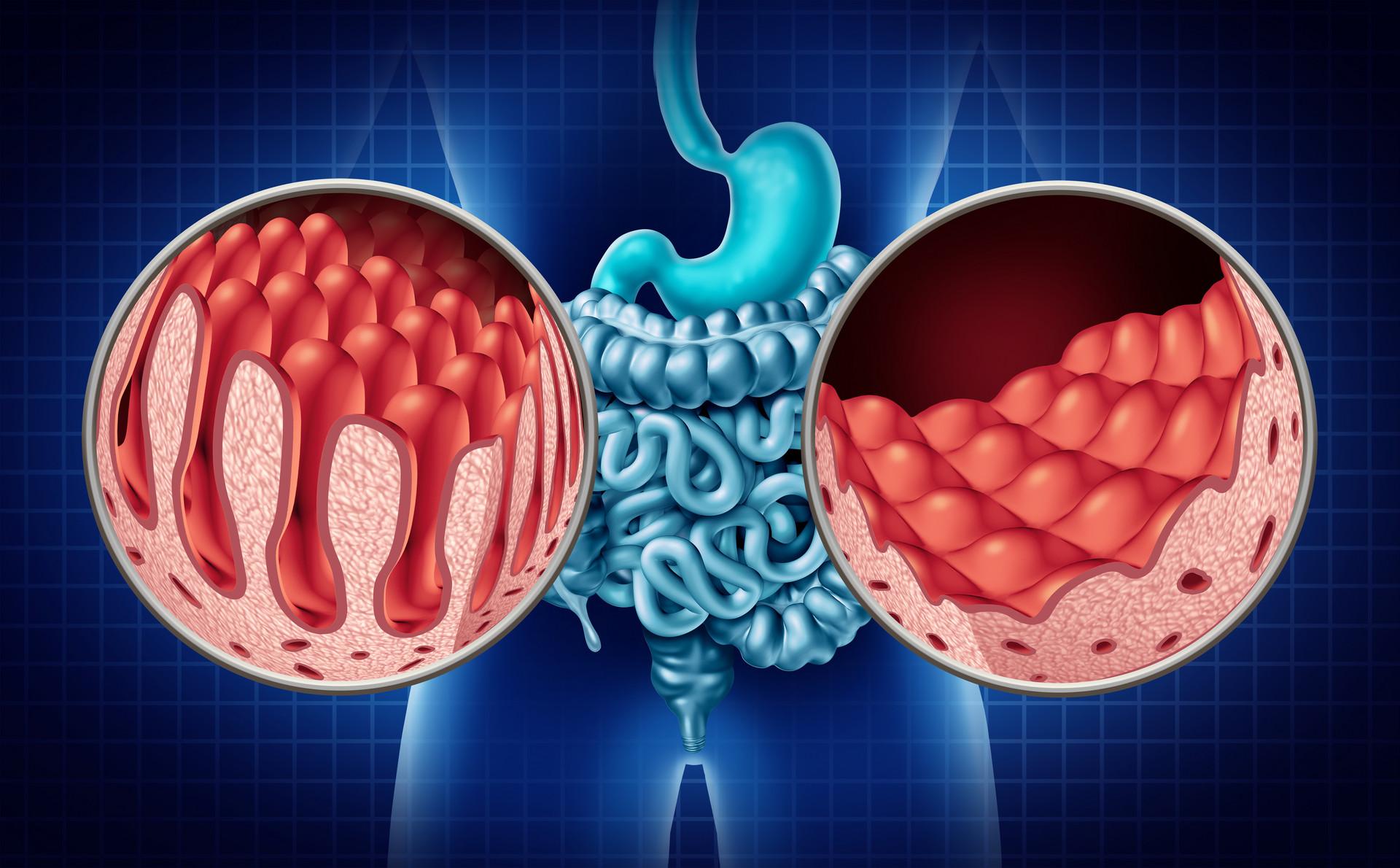 基石药业再传喜讯!精准治疗药物泰吉华®获批上市,中国胃肠道间质瘤患者迎来新疗法