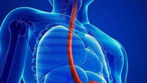 欧狄沃(纳武利尤单抗)联合化疗及欧狄沃联合伊匹木单抗治疗晚期不可切除或转移性食管鳞癌患者均可带来显著生存获益