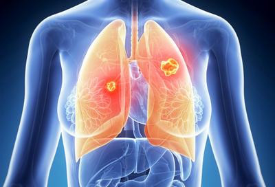 基石药业普拉替尼拟递交新适应,非小细胞肺癌精准治疗管线再扩大