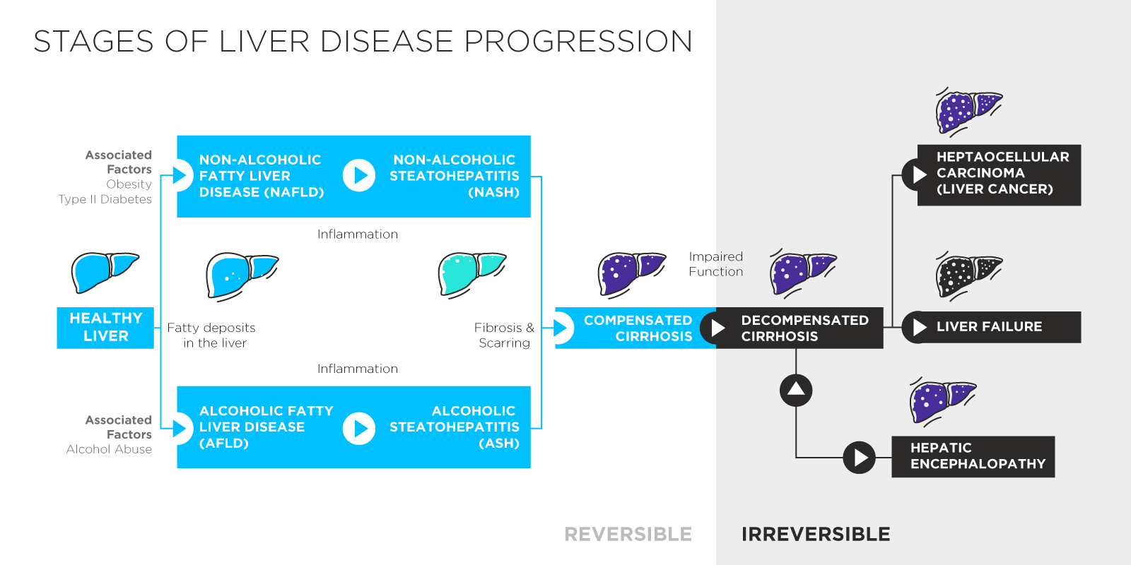 2019-08-Liver-Disease-Schematic.png