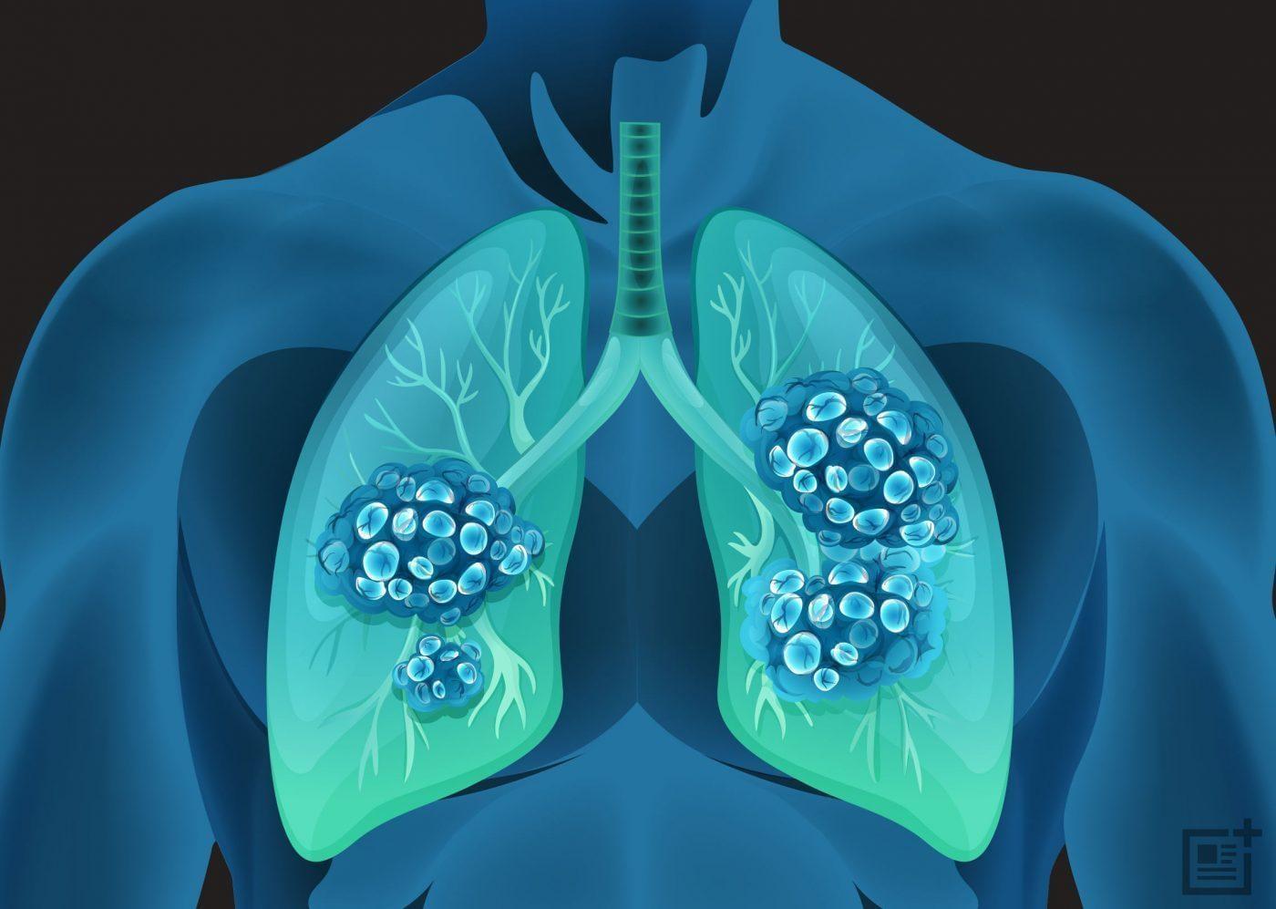 基石药业WCLC公布舒格利单抗治疗IV期非小细胞肺癌注册性临床研究的更新数据