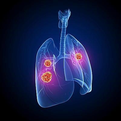 基石药业于ESMO年会公布舒格利单抗重磅研究数据  同步或序贯放化疗患者均获益