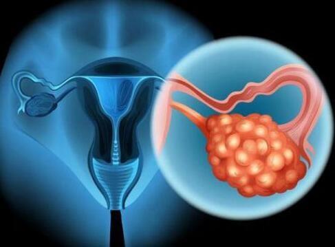 48岁身患卵巢癌,在荆棘中探寻生存之路!